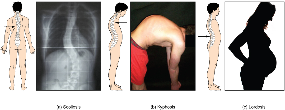Can scoliosis be cured in adults